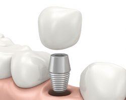 Dental Implants 1 Leawood, KS | S & G Family Dentistry, P.A.