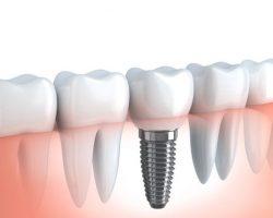 Dental Implants 2 Leawood, KS | S & G Family Dentistry, P.A.