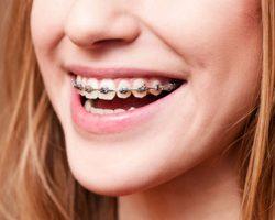 Orthodontics 1 Leawood, KS | S & G Family Dentistry, P.A.